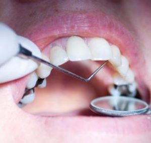 Mercury-Free Dentistry